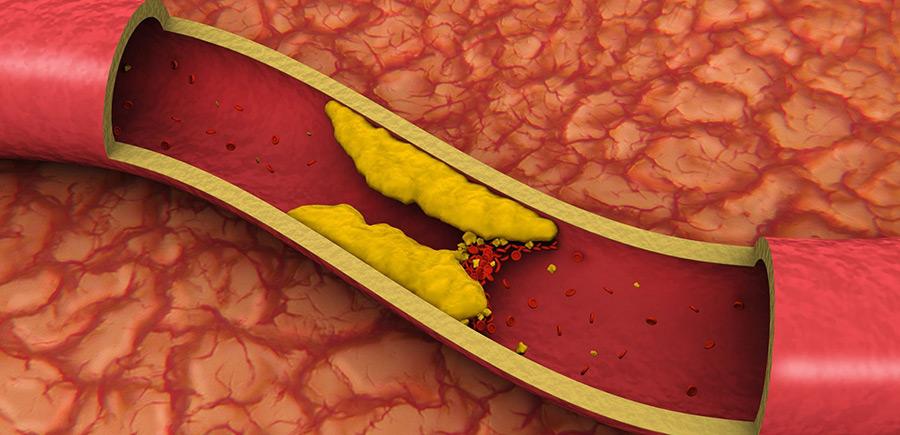 Холестерин под контроль